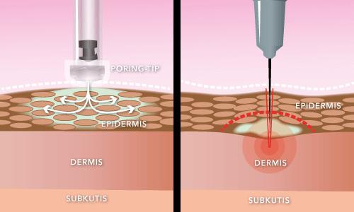 No needle vs needle