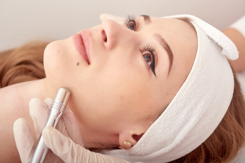 Procedure Microdermabrasion of the facial skin.