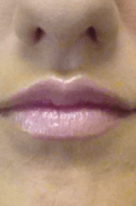 womans lips that have had lip enhancements