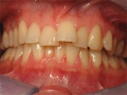 This patient was unhappy with upper front tooth 'sticking' out.