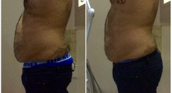 Liposculpt Results from Single Treatment