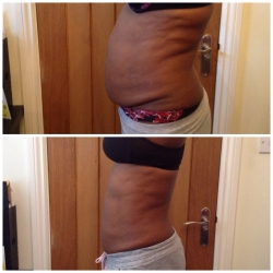Liposculpt Results from a 10 Treatment Course