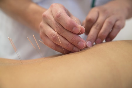 Acupuncturist performing acupuncture on patient's back